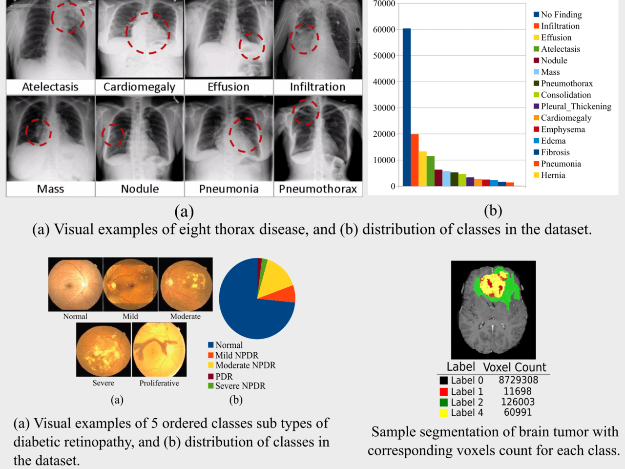 Deep Learning for Analysis of Imbalanced Medical Image Datasets