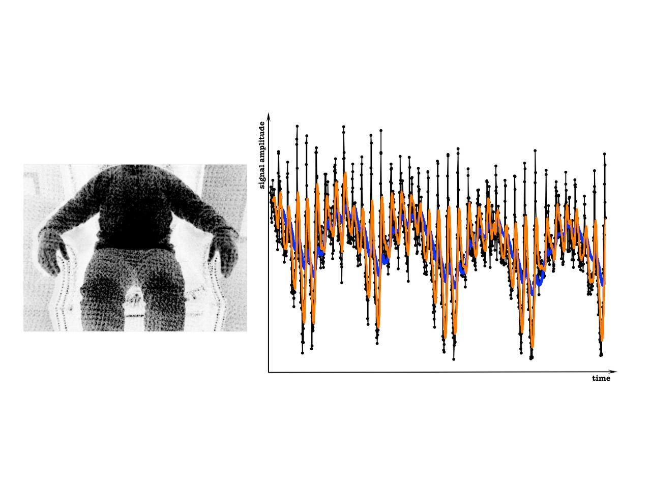 Heartbeats and respiration detection using artificial light texture