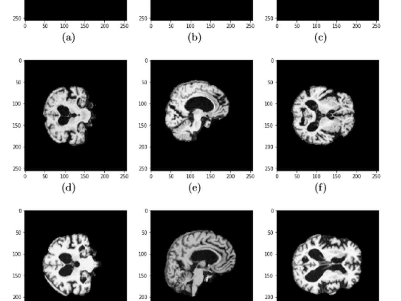 Early Diagnosis of Alzheimer's Disease from 3D brain MRI using Deep