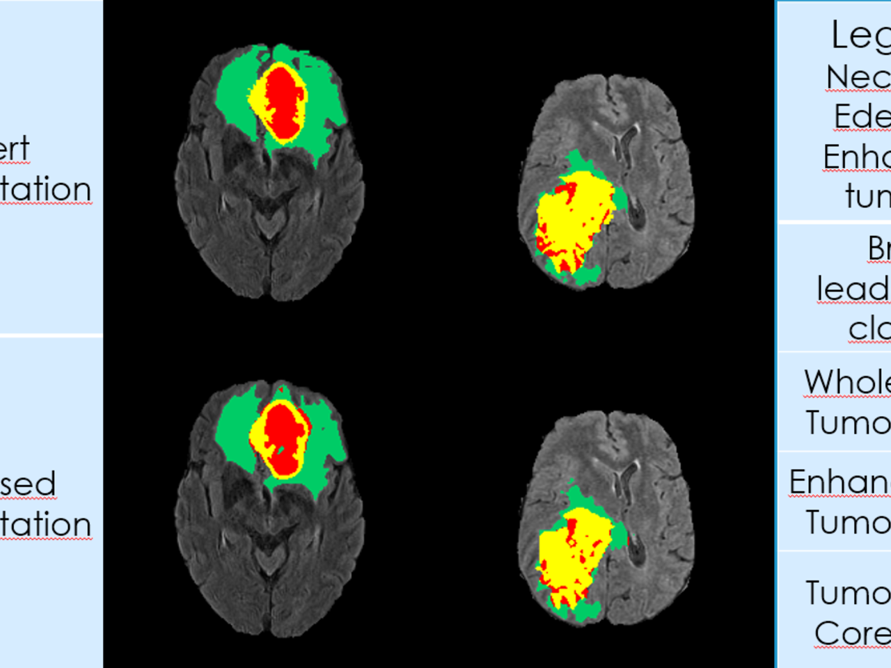 BRATS 2017 Glioma segmentation using Fully Convolutional Neural Networks