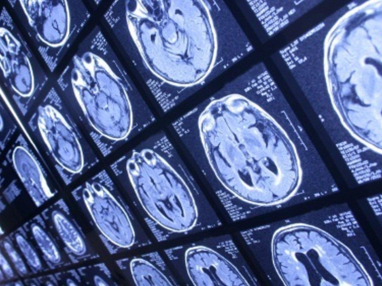 Medical Image segmentation using deep learning