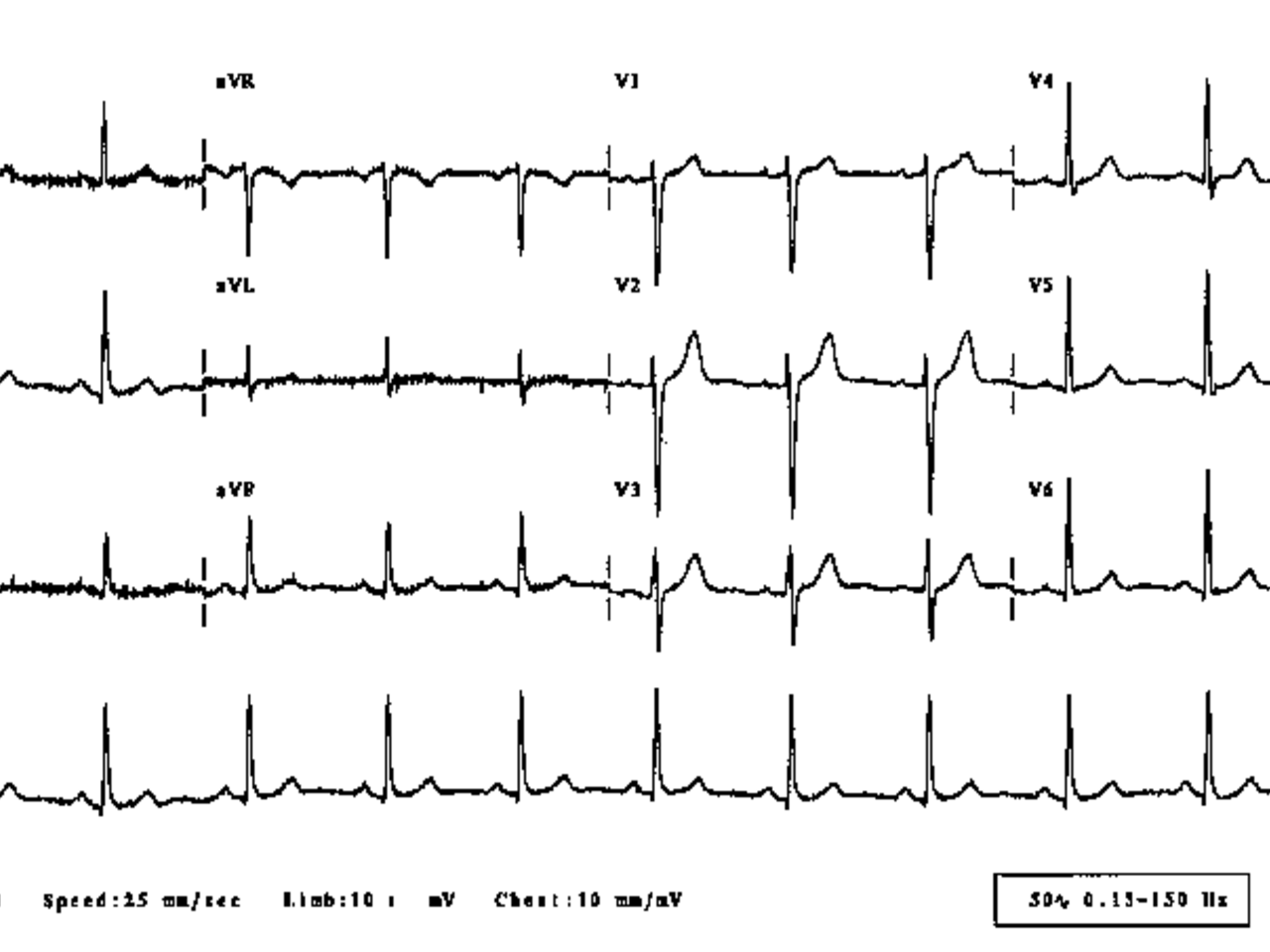 ECG Reading AI