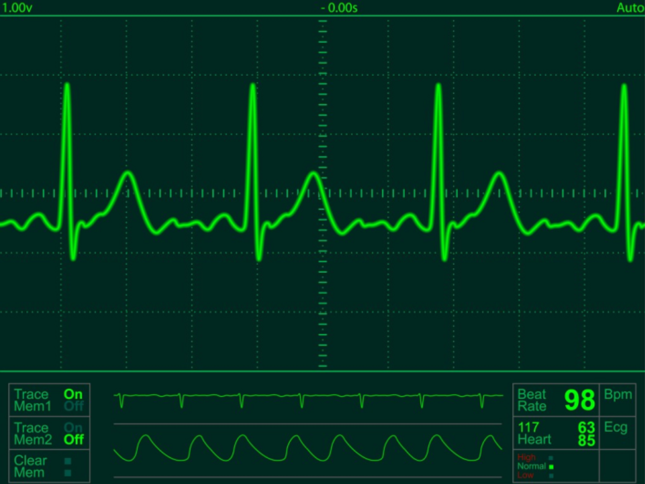 Interfacing Electrocardiogram (ECG) with IoT