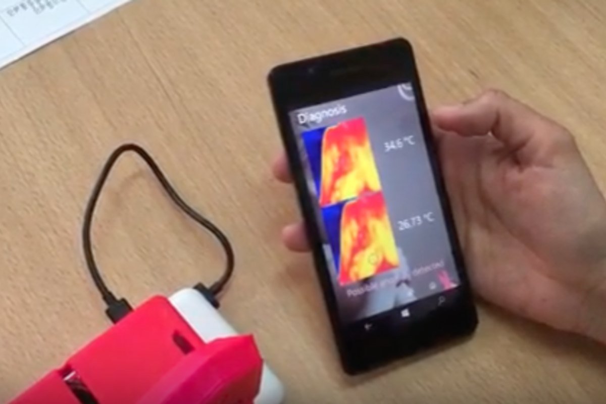 Infrared thermal camera to detect breast cancer
