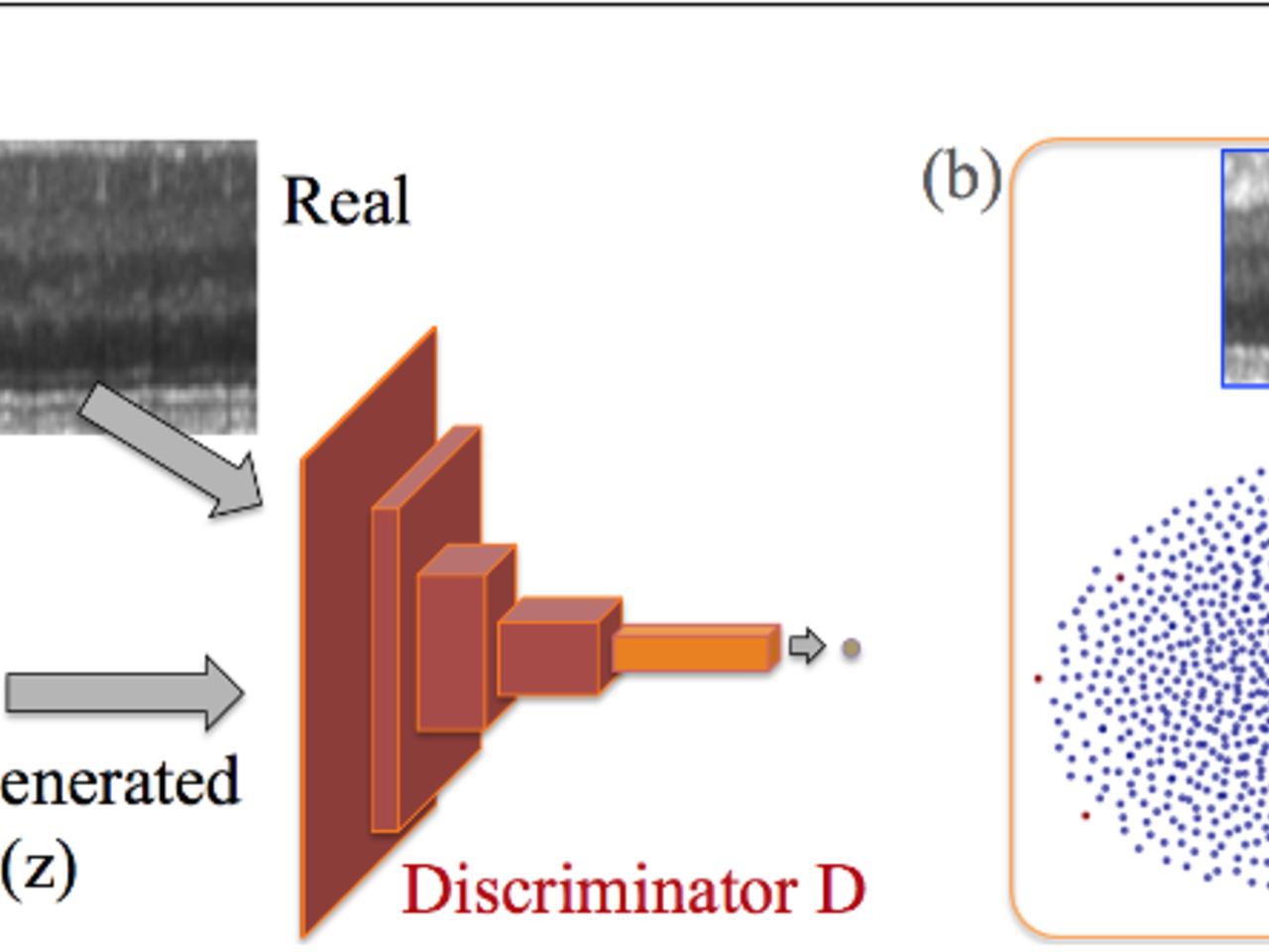 Anomaly detection Using Generative Adversarial Networks | Intel DevMesh