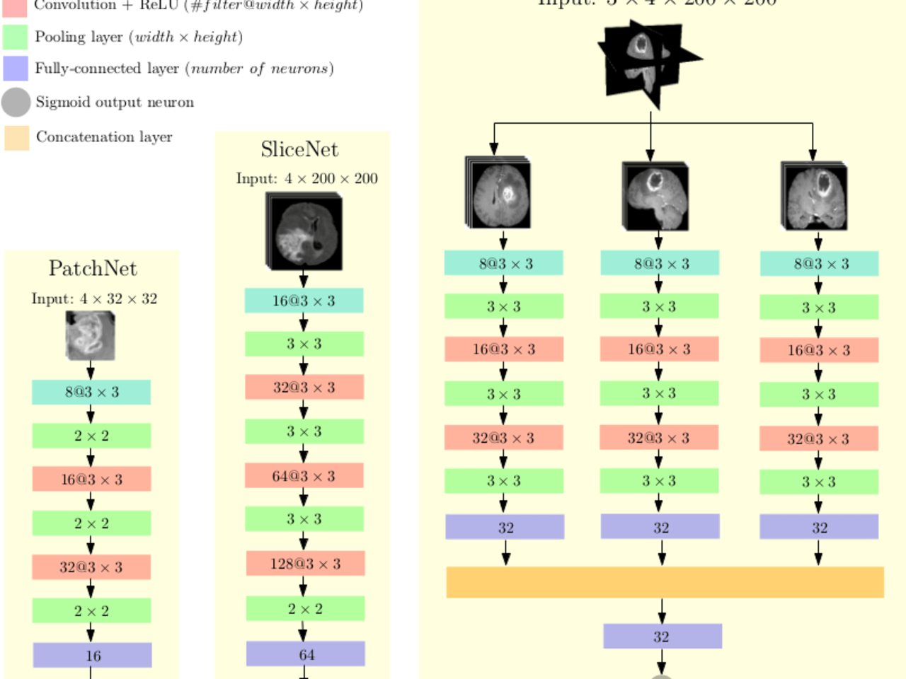 Brain Tumor Detection and Classification from Multi-Channel