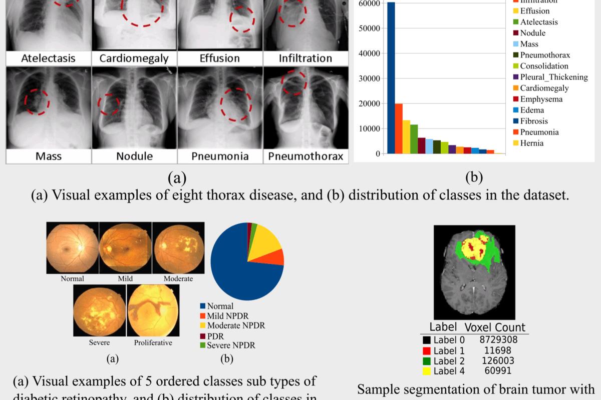 Deep Learning for Analysis of Imbalanced Medical Image